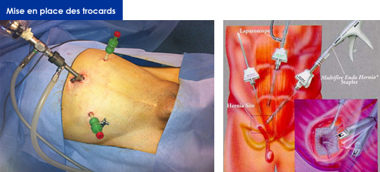 chirurgie-coelioscopie-hernie-inguinale