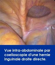 vue-coloescopie-hernie-inguinale-droite-directe