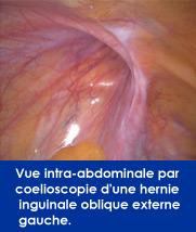 vue-coloescopie-hernie-inguinale-oblique