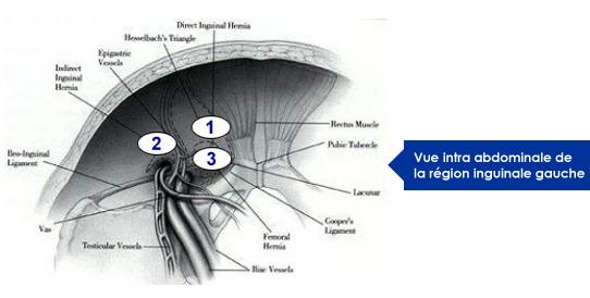 vue-intra-abdominal-region-inguinale-gauche